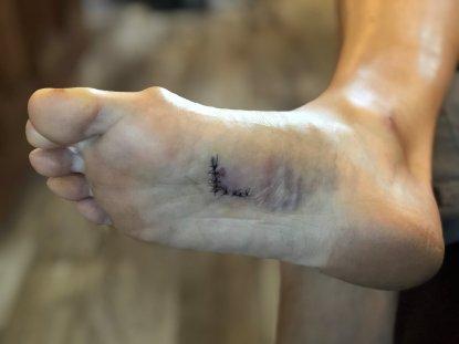 Nine sutures in Phil's foot